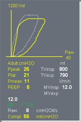 Спирометрия пациента.png